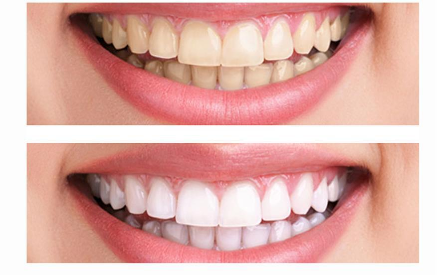 teeth whitening noble park