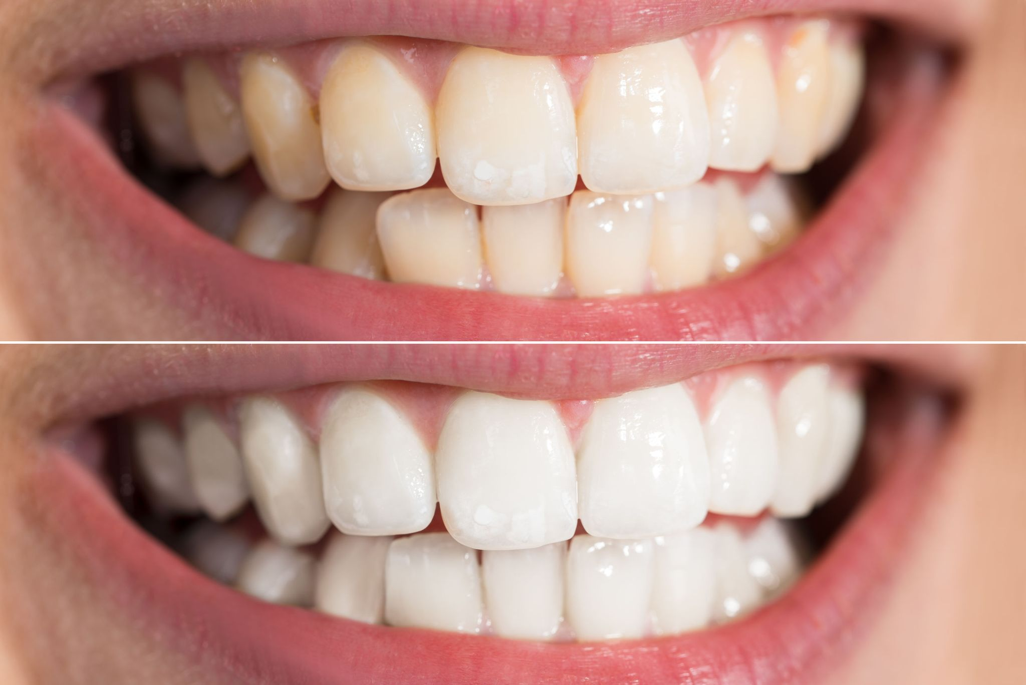 Reasons to Get Laser Teeth Whitening Treatments
