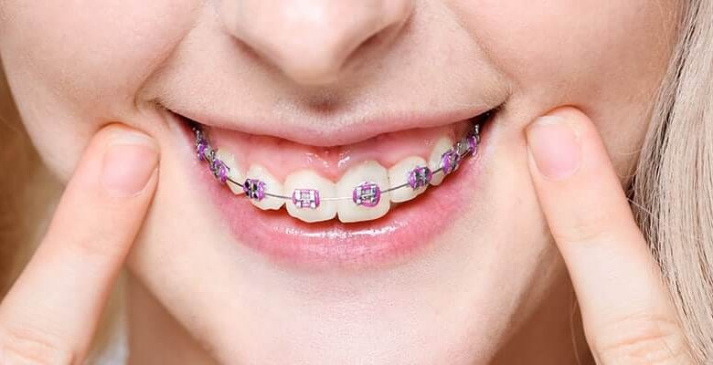 Reasons to Consider Invisalign as an Adult